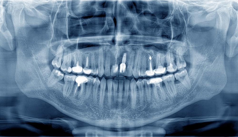 radiografie dentara, radiografie dentara muncii, radiografie dentara piata muncii, radiografie dentr