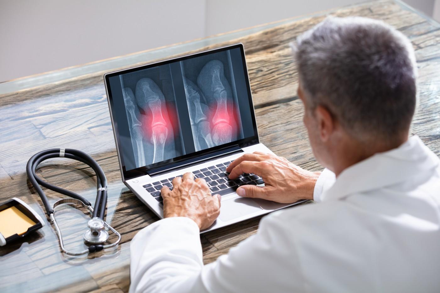 Beneficii radiografii