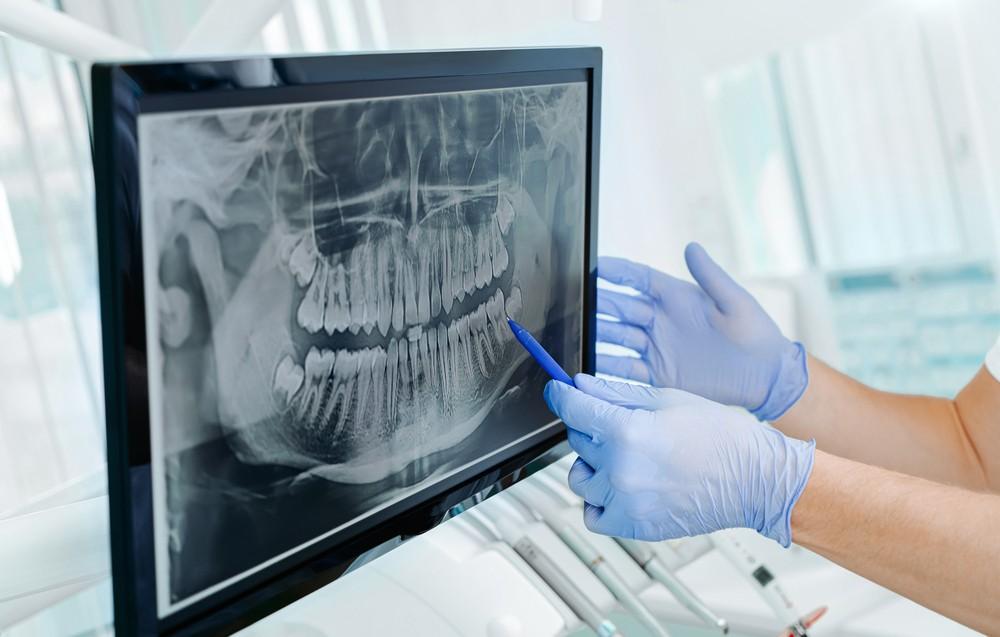radiografie dentara, radiografie dentara oradea, radiografie dentara digitala oradea