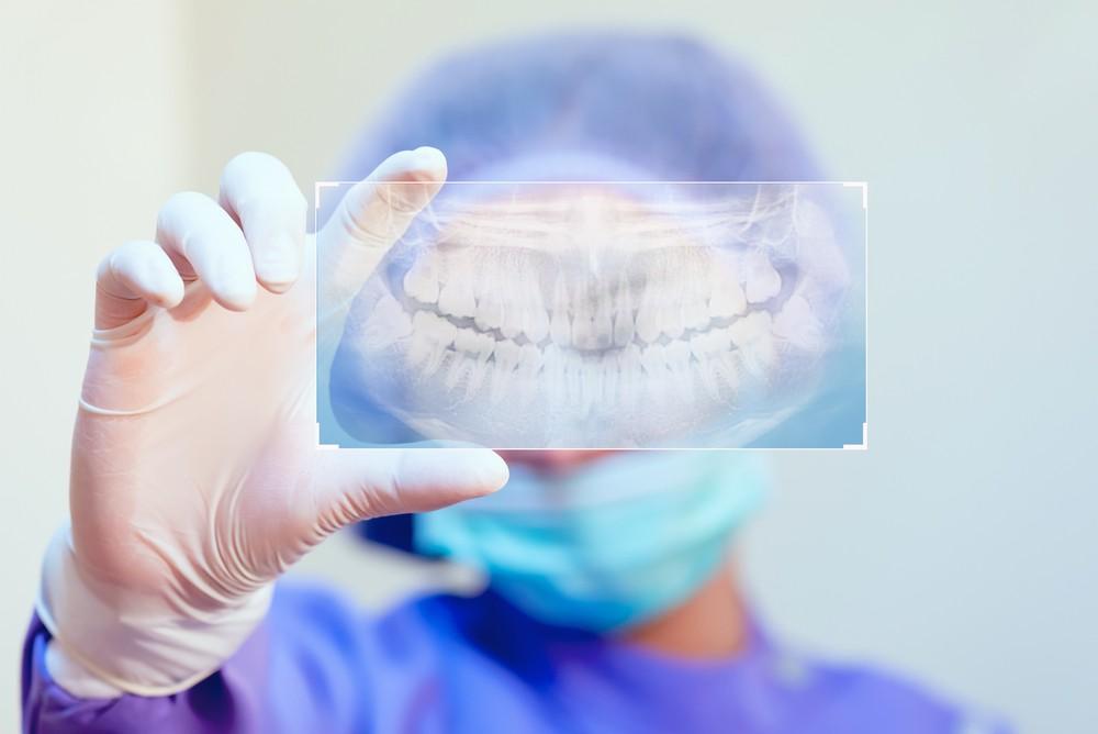 radiografie dentara, radiografie dentara crangasi, radiografie dentara sector 6, radiografie dentara