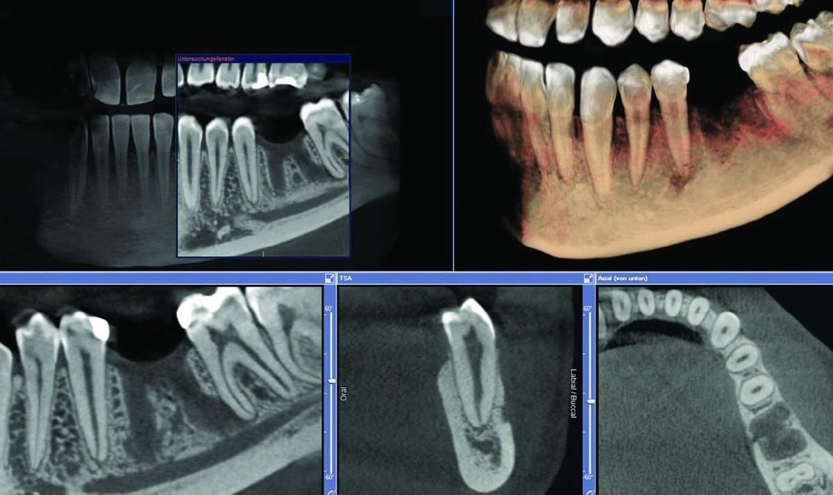 Imagistică dentară 3D în București