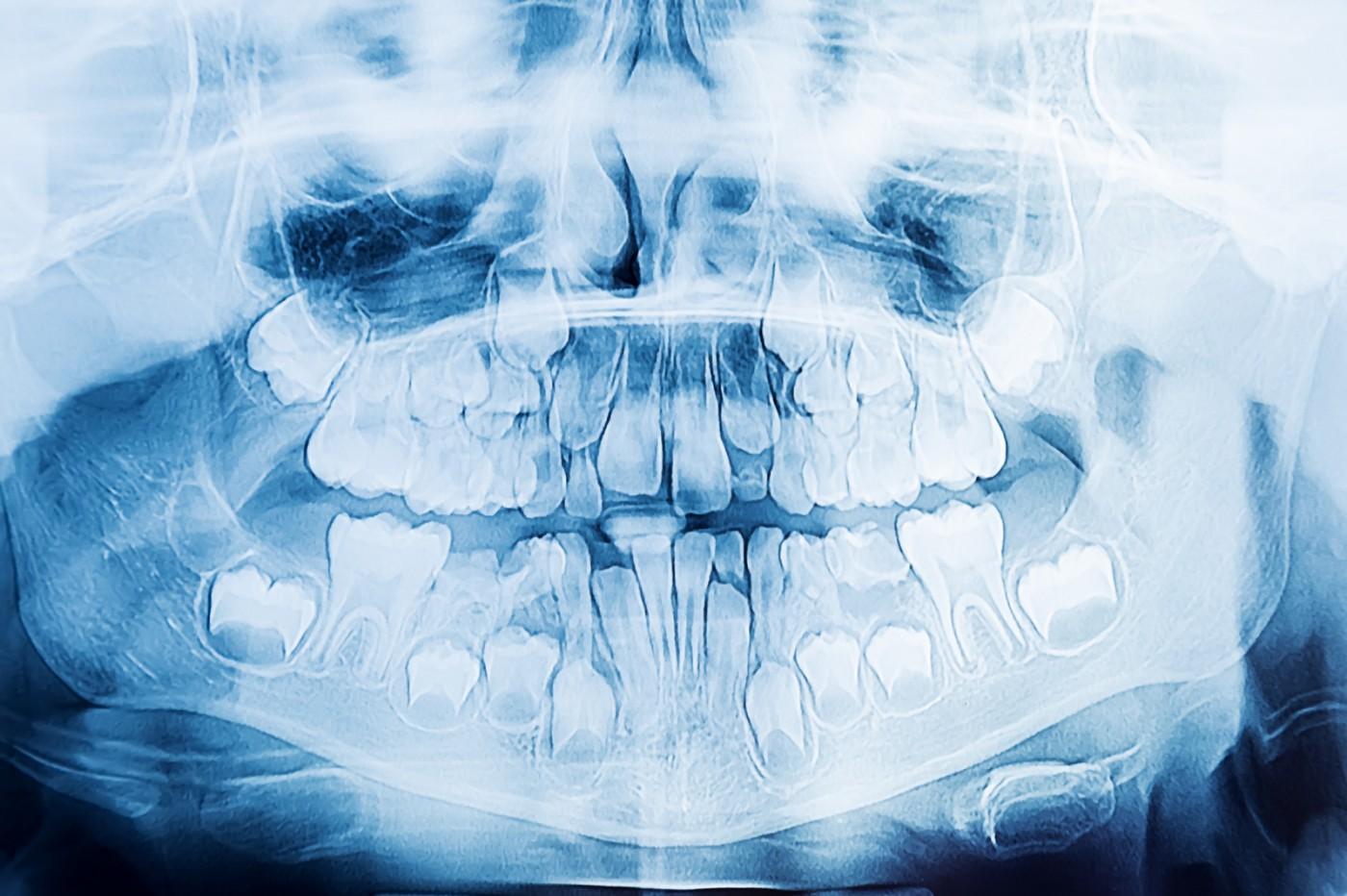 Radiografie panoramică București - YTS-Dental View