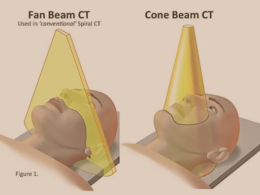 Tomografii dentare cu radiații minime