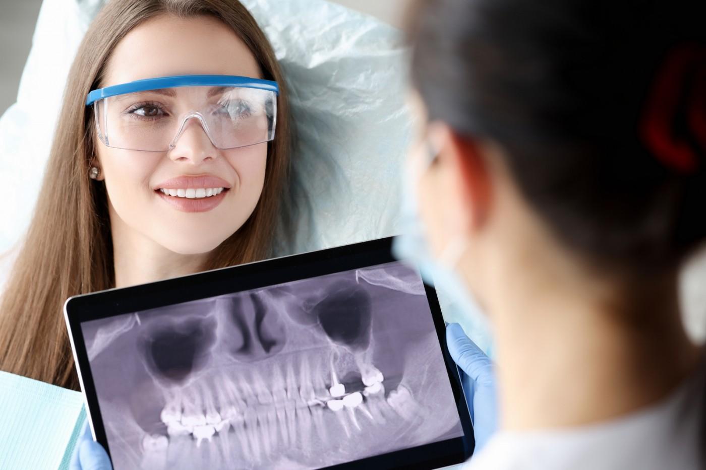 Radiologia dentară digitală YTS-Dental View Piaţa Sudului: calitate și expunere minimă la radiaţii