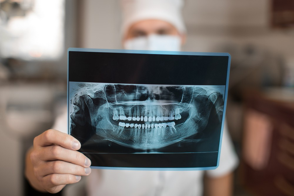 radiografie dentara, radiografie dentara lujerului, radiografie dentara sector 6