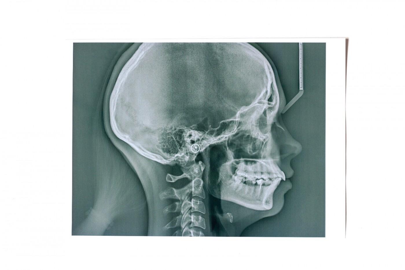 teleradiografie dentara lujerului, teleradiografie dentara sector, teleradiografie dentara bucuresti