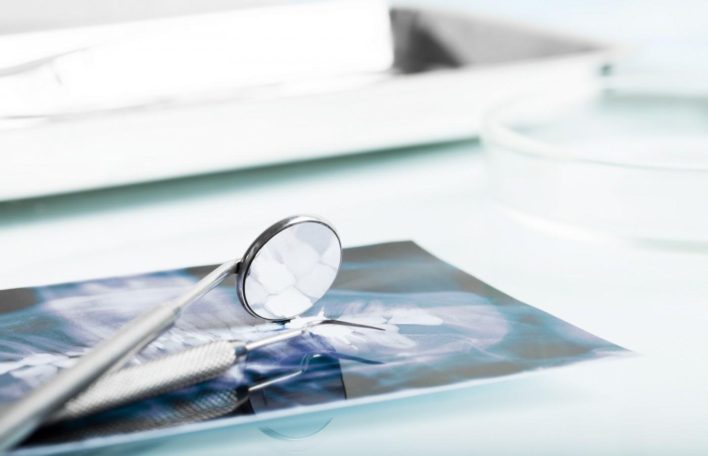Ce aport aduce radiologia dentară la realizarea corectă a unui tratament stomatologic?