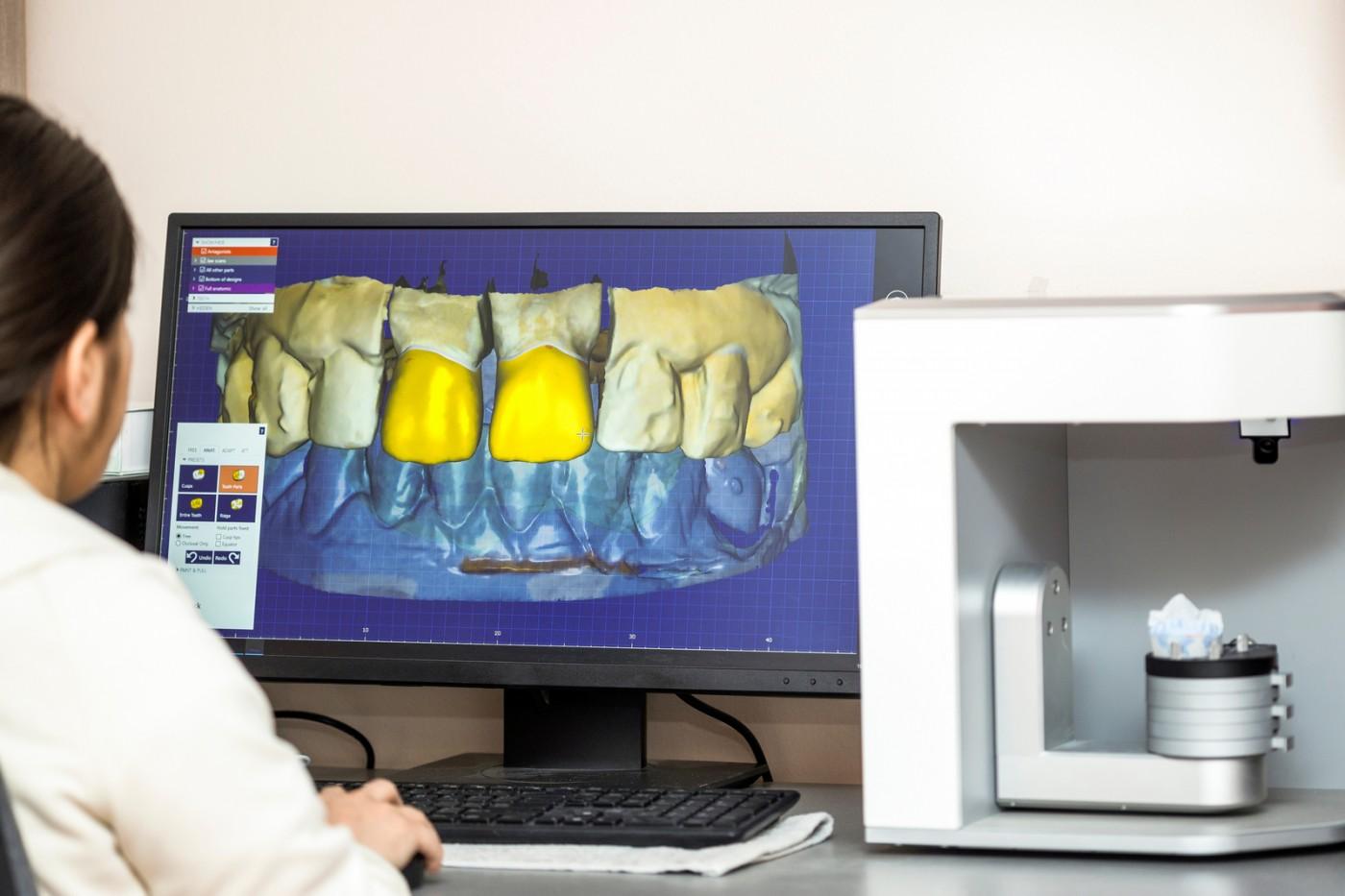 Amprente dentare digitale la YTS-Dental View