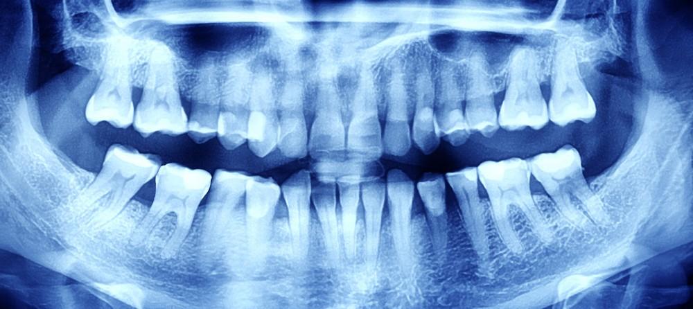 radiografie dentara, radiografie dentara piata muncii, radiografie dentara sector 3