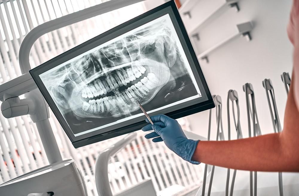 radiologie dentara oradea, radiografie dentara oradea, yts dental view oradea