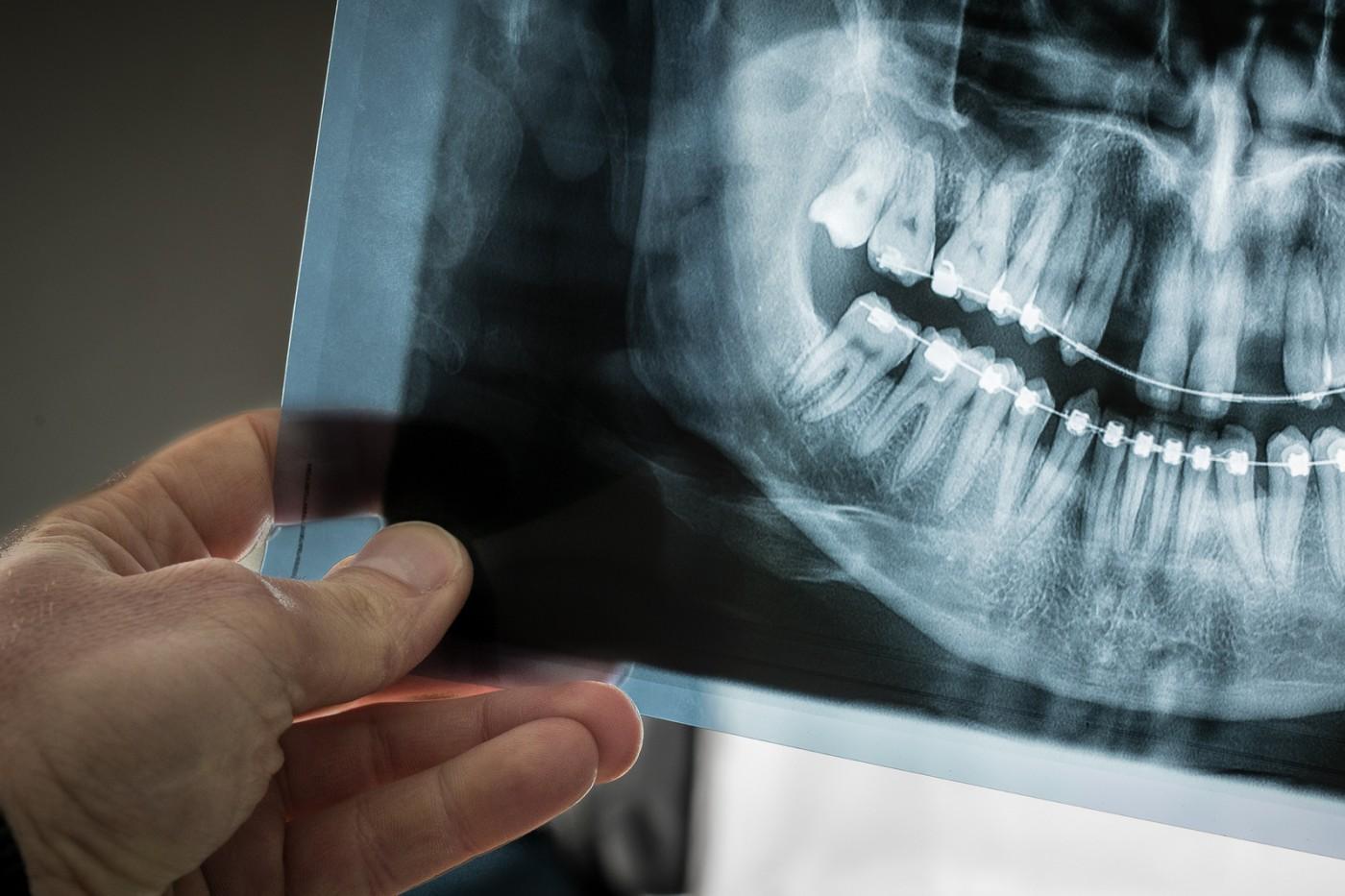 De ce sunt radiografiile necesare medicului ortodont?