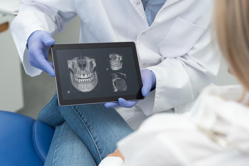 tomografie dentara piata muncii, tomografie dentara sector 3, tomografie dentara dental view