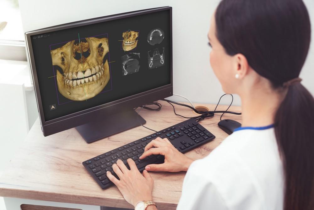 tomografie dentara, tomografie dentara computerizata bucuresti, pret tomografie dentara, dental view