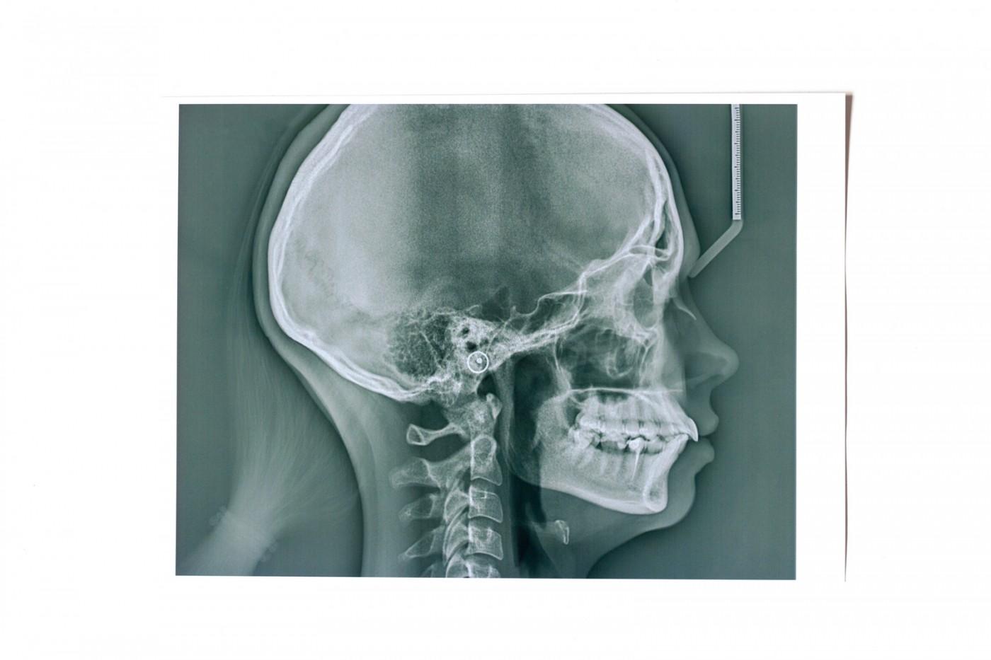 Set ortodontic Bucuresti