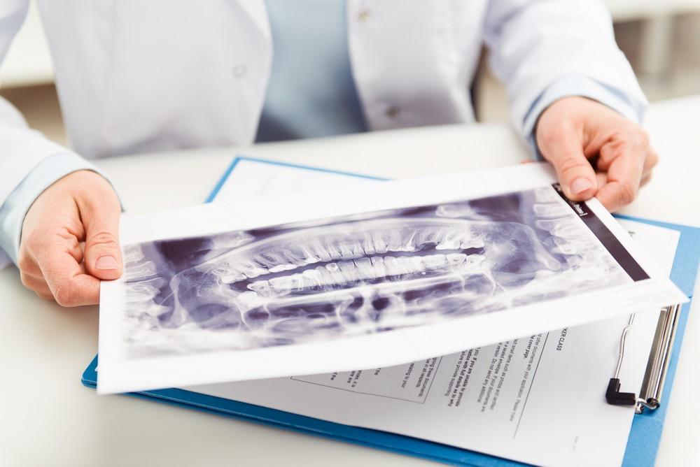 radiografie dentara implant, yts dental view bucuresti, radiografie bucuresti